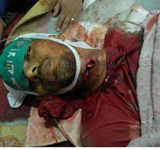 Gambar Rakyat Mesir Terbunuh 1
