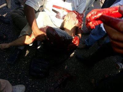 Gambar Rakyat Mesir Terbunuh 4